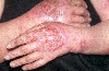 localisation: hands, diagnosis: Acute Irritant Contact Dermatitis
