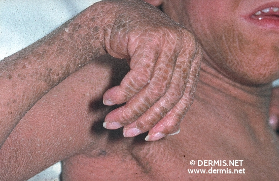localisation: arms hands diagnosis: Sjögren-Larsson Syndrome