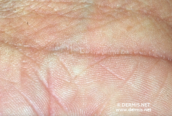 localisation: palms diagnosis: Ichthyosis Congenita