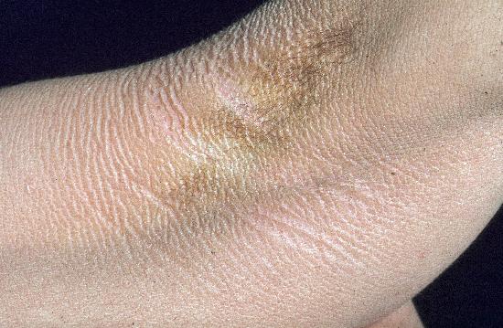 Ictiosis congenita