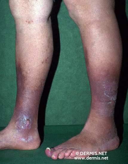 localisation: lower leg diagnosis: Ulcus Cruris Venosum