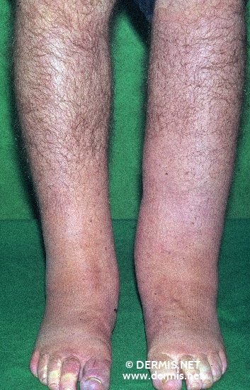 localisation: lower leg diagnosis: Lymphoedema