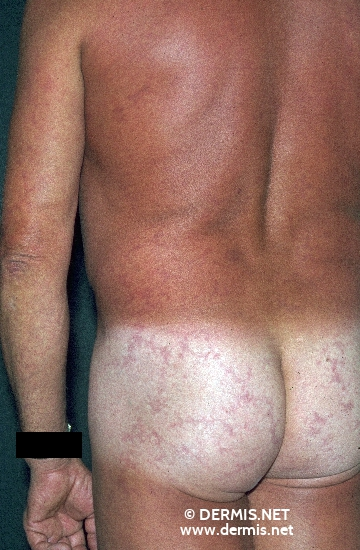 localisation: buttocks diagnosis: Livedo Reticularis