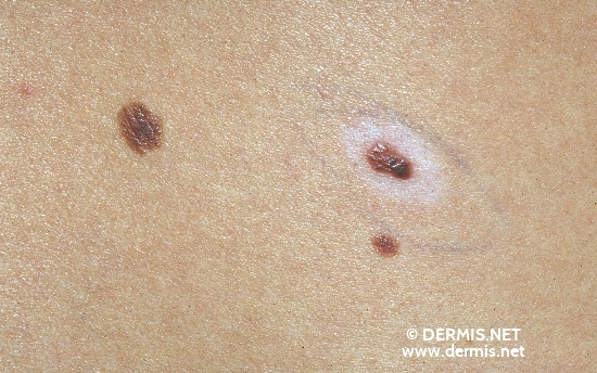 diagnosis: Halo Nevus