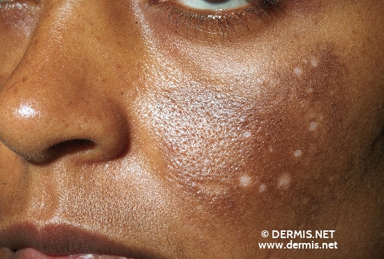 localisation: face cheek diagnosis: Leukoderma Chloasma Medicamentosum