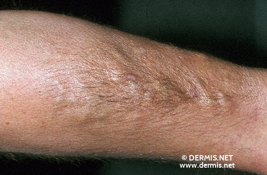 localisation: lower arms diagnosis: Hypertrichosis Corticoid Damage