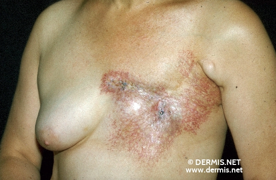 localisation: chest diagnosis: Radiodermatitis, Chronic