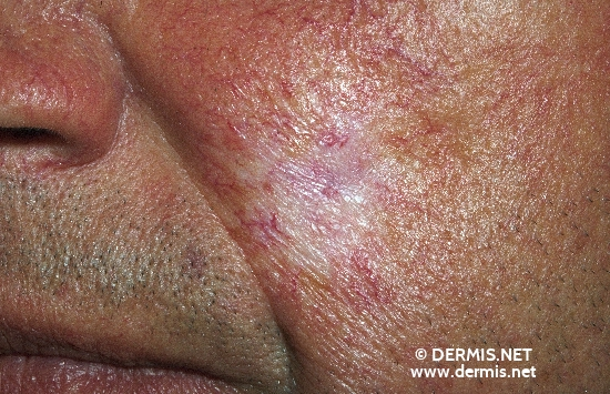 localisation: cheek diagnosis: Radiodermatitis, Chronic