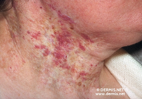 localisation: neck diagnosis: Radiodermatitis, Chronic Port-Wine Stain
