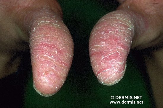 localisation: tip of the finger diagnosis: Dermatosis Palmoplantaris Juvenilis