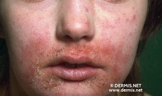 localisation: lips (skin) peri-oral diagnosis: Atopic Eczema