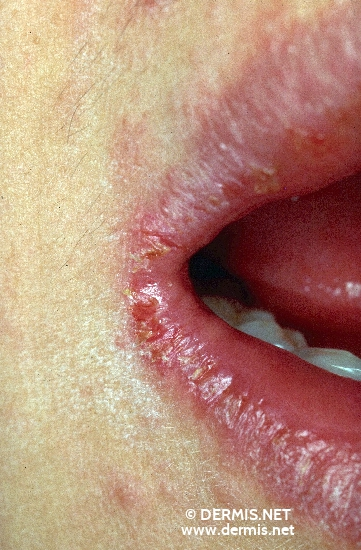 localisation: angle of the mouth diagnosis: Atopic Eczema