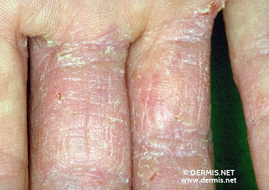 localisation: finger diagnosis: Atopic Eczema of the Hands