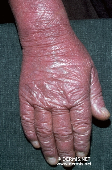 localisation: hands back of the hands diagnosis: Erythrodermia, Primary