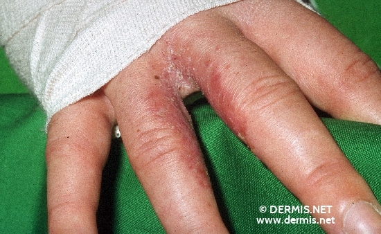 localisation: interdigital region of the fingers diagnosis: Dyshidrotic Eczema