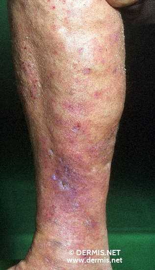 localisation: lower leg diagnosis: Stasis Dermatitis Atrophie Blanche