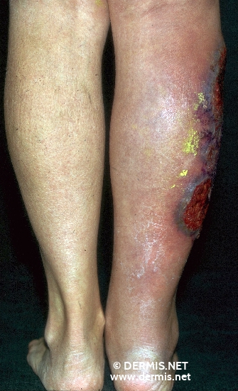 localisation: lower leg diagnosis: Pyoderma Gangrenosum