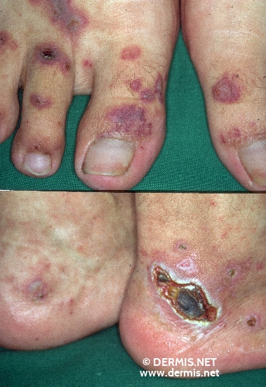 localisation: heel toe diagnosis: Allergic Vasculitis