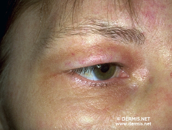 localisation: around the eyes upper eyelid diagnosis: Port-Wine Stain Lymphoedema