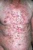localisation: chest, abdomen, diagnosis: Pemphigus Seborrhoicus