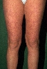 localisation: upper leg, diagnosis: Systemic Lupus Erythematosus, Livedo Reticularis