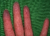 localisation: tip of the finger, diagnosis: Thrombangiitis obliterans