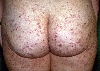 localisation: buttocks, diagnosis: Allergic Vasculitis