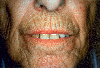 localisation: mouth (skin), radial, diagnosis: Progressive Systemic Scleroderma