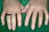 localisation: finger, diagnosis: Progressive Systemic Scleroderma
