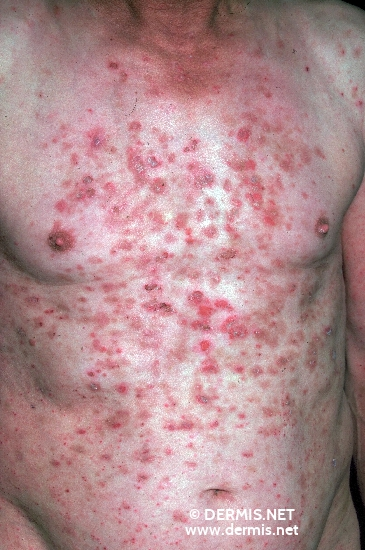 localisation: chest abdomen diagnosis: Pemphigus Seborrhoicus