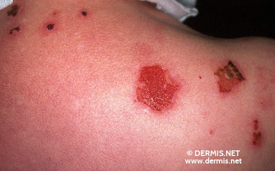 localisation: upper back diagnosis: Bullous Pemphigoid