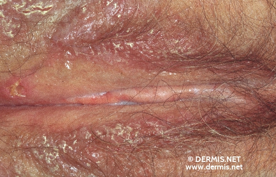 localisation: labia maiora diagnosis: Benign Familial Chronic Pemphigus