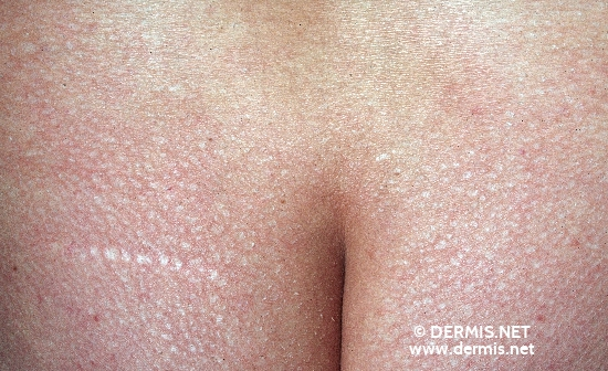 localisation: buttocks diagnosis: Ichthyosis Vulgaris