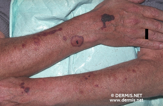 localisation: arms diagnosis: Purpura Steroidica Corticoid Damage