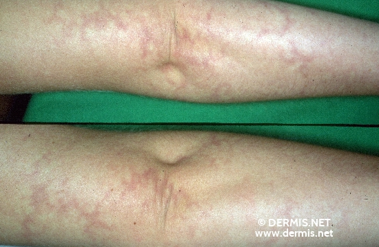 localisation: arms diagnosis: Livedo Reticularis