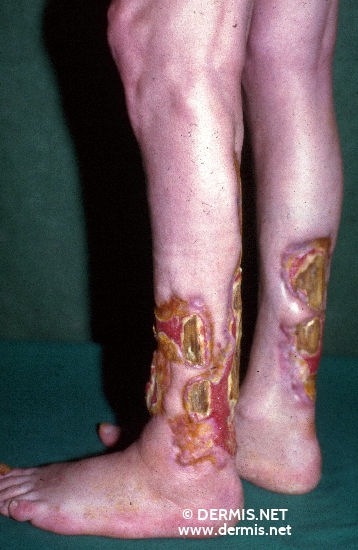 localisation: Unterschenkel Diagnose: Pyoderma gangraenosum