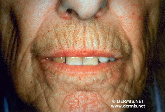 localisation: mouth (skin) radial diagnosis: Progressive Systemic Scleroderma