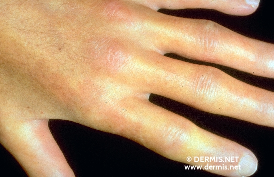 localisation: hands diagnosis: Progressive Systemic Scleroderma