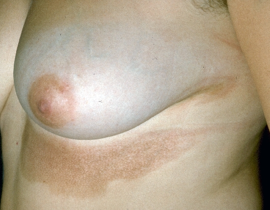 localisation: upper abdomen diagnosis: Localized Scleroderma