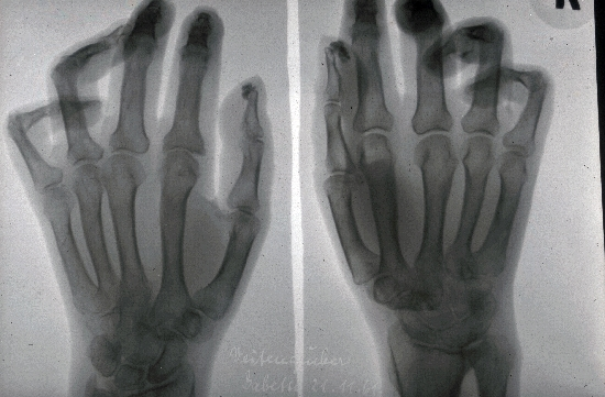 diagnosis: Progressive Systemic Scleroderma