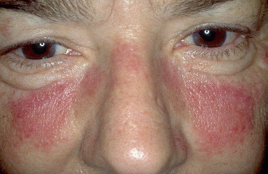 localisation: face diagnosis: Systemic Lupus Erythematosus