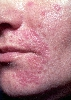 localisation: face, diagnosis: Perioral Dermatitis