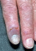 localisation: digital distal interphalangeal joint, diagnosis: Chilblain Lupus