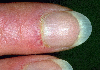 localisation: proximal nail fold of the finger, diagnosis: Dermatomyositis