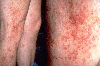 Lokalisation: Beine, Diagnose: Purpura eczematid-like (Doucas-Kapetanakis)