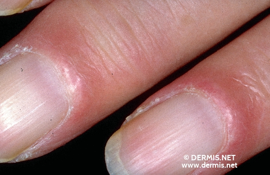 localisation: Fingernagelfalz Fingernagelwall periungual (Fingernagel) Diagnose: Lupus erythematodes visceralis