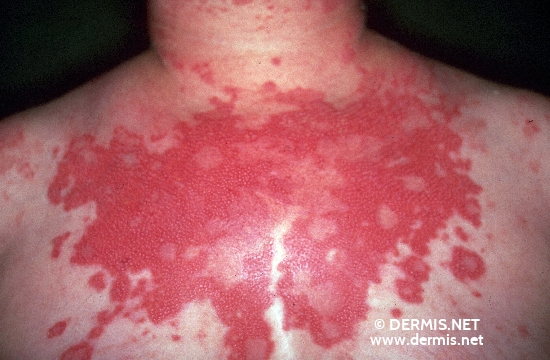 localisation: upper chest diagnosis: Subacute Cutaneous Lupus Erythematosus SCLE