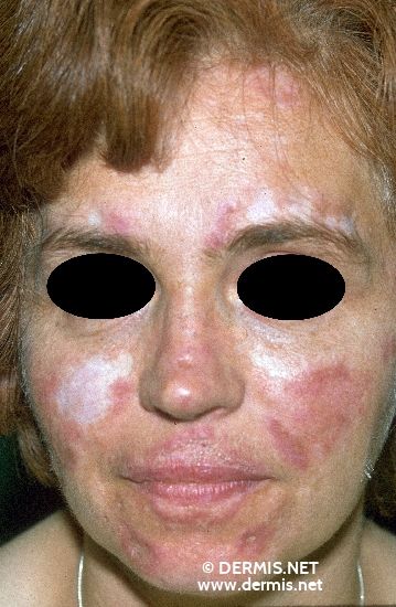 Lupus and the skin | National Resource Center on Lupus