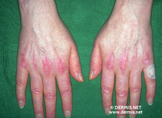 localisation: digital metacarpo-phalangeal joint digital proximal interphalangeal joint digital distal interphalangeal joint diagnosis: Dermatomyositis