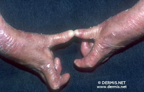 localisation: lower arms diagnosis: Epidermolysis Bullosa Hereditaria